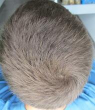 Gråt hår nogle uger efter olie og citron behandling