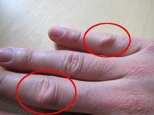 Billede af hårde knopper på lange- og lillefinger